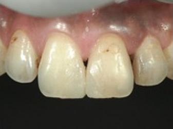 仮充填による口腔内イメージの患者確認