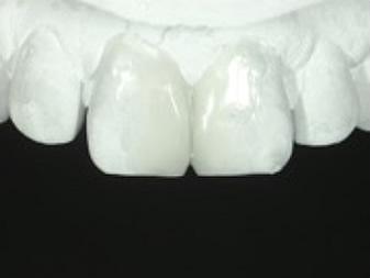修復を再現した診断用ワックスアップの唇側面観