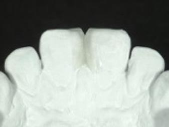 ガイド作成を意識したワックスアップの口蓋側面