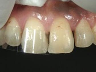 隣接面部の接合を回避して口蓋側部レジンを圧接