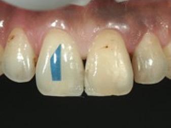 3Dマトリックスによる歯頸部カントゥアの再現