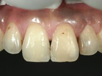 口蓋側・歯頚側の充填完了