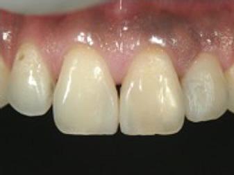 周囲窩洞への色調適合性の修正