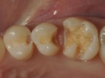 感染象牙質除去・窩洞形成終了