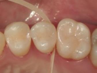 歯肉側窩縁の移行部研磨操作