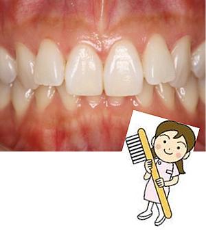 teethmate3