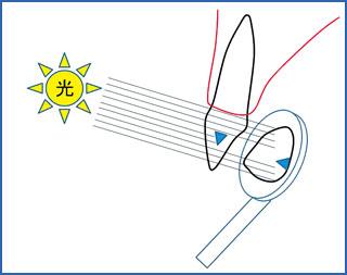 透過光線を用いた前歯隣接面う蝕の診査法(透照診)の模式図