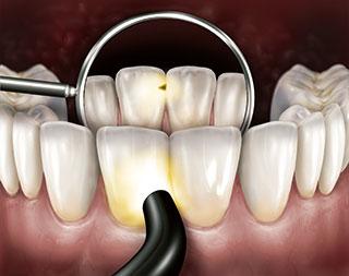 本製品を用いた前歯部の透照診の画像