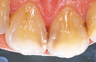 術前写真 舌側面観