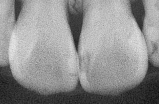 症例1:X線写真