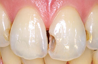 症例1:窩洞形成後の写真