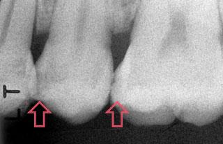症例2:X線写真
