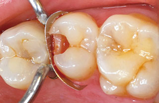 症例2:窩洞形成後の写真