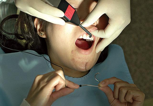 図4 対極クリップは患者の口角部に掛けておくか、指でつまませておく。