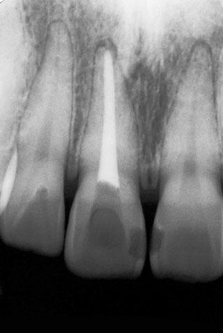図12の患者の右側中切歯の治療経過写真