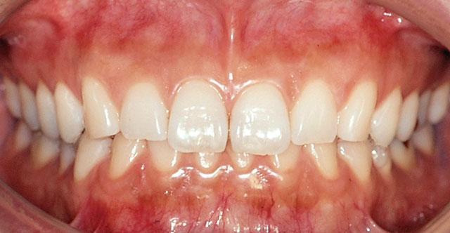 患者の術前口腔内写真(唇側面観)