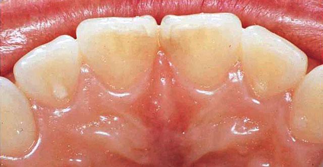 図12の患者の口蓋側面観
