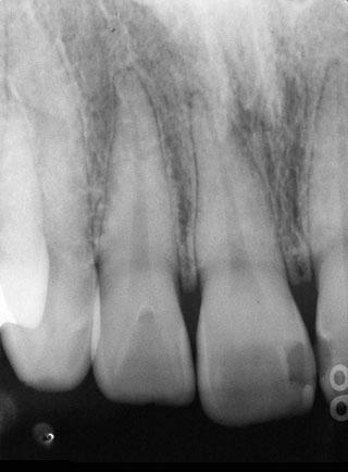 図12の患者の術前X線写真