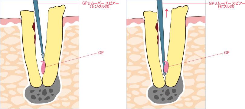 GPの使用イメージ
