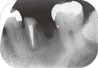 根管充填後のレントゲン画像