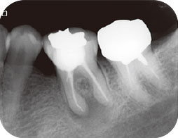 下顎左側第一大臼歯のエックス線写真
