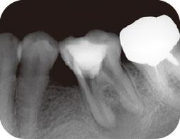 近心根根尖部に、残留していた破折片が除去されたことを確認したエックス線写真