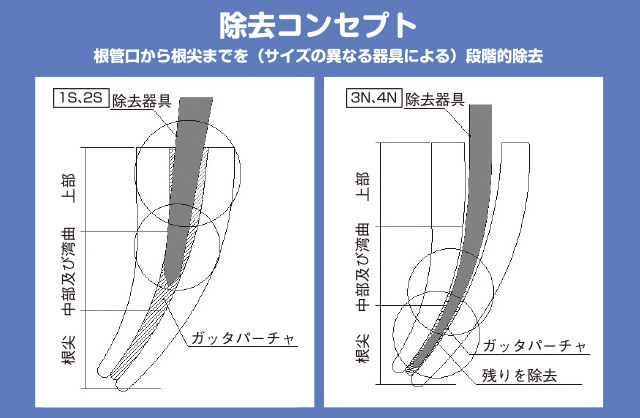 GPRの除去コンセプト図