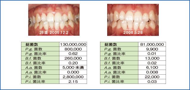 口腔内の実際:侵襲性歯周炎を疑ったケースの細菌検査の結果表