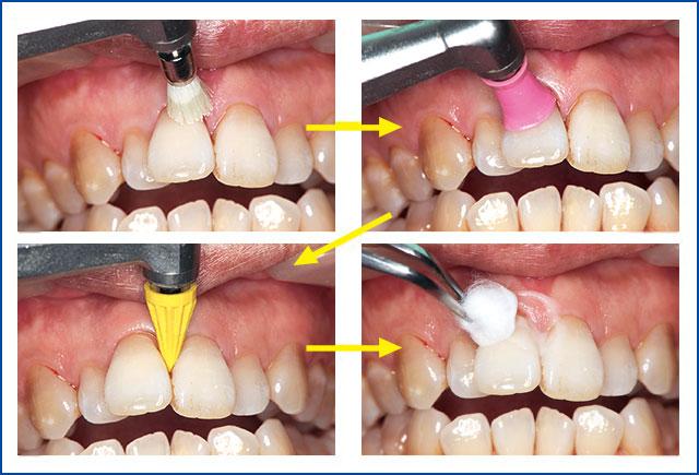 歯面研磨の仕上げとしての活用事例の写真