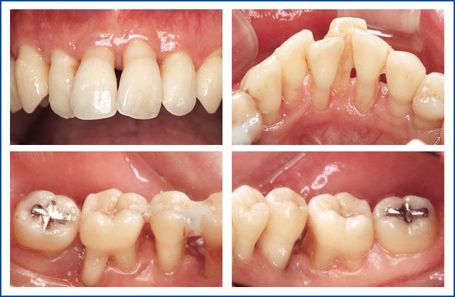 SPT期患者さんの口腔内事例の写真