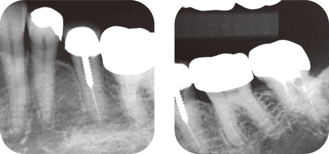 図5a、b 4567 に2次う蝕があり再修復を行う。デンタルでは根尖病変を認めず、歯内療法を行うべきか迷う。