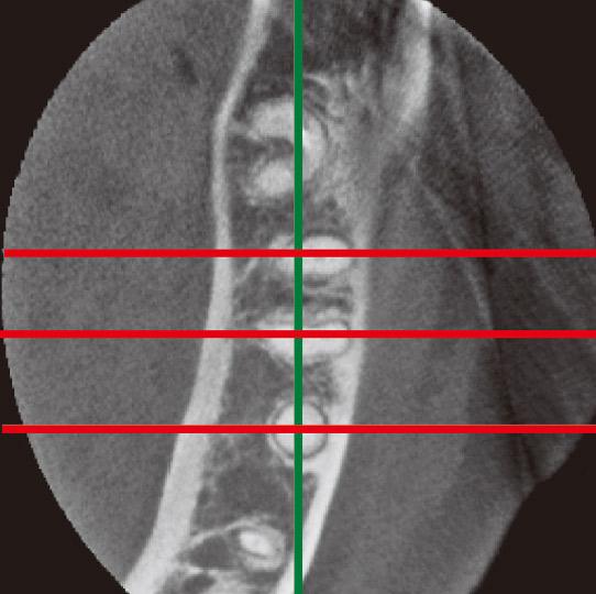 図5c 3DXによる水平断。