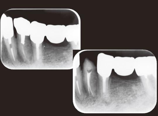 図2 下顎第1小臼歯は2根管存在することもある。デンタルX線写真では偏心投影で撮影すれば確認することもできるが、常に2根管あるかもしれないと頭の中になければ見落としてしまう。