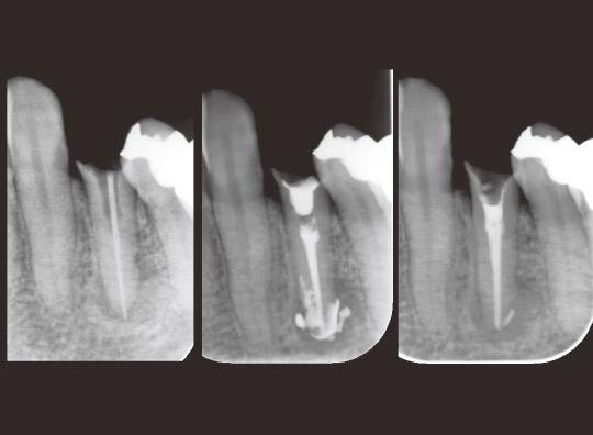 図5 左より治療開始時、水酸化カルシウム製剤貼薬時、治療開始3ヵ月後の根充時のデンタルX線写真。