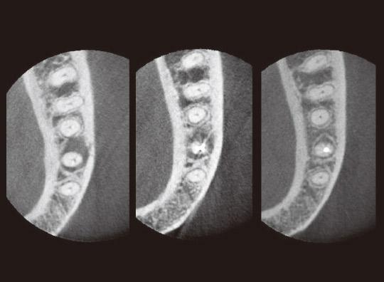 図6 CT写真(冠状断)。左より治療開始時、根充時、治療開始6ヵ月後の根充時。