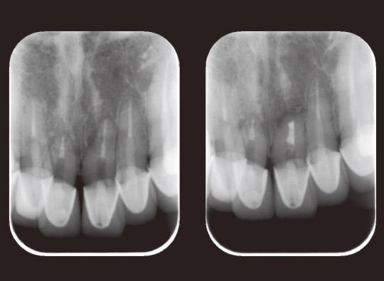 図11 術前、術後のデンタルX線写真。
