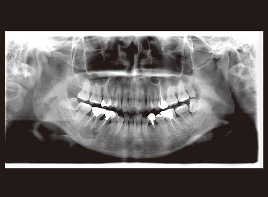 図15 初診時パノラマX線写真。