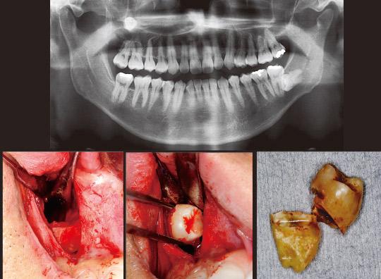 図18 初診時パノラマX線写真と術中写真および摘出した歯牙。