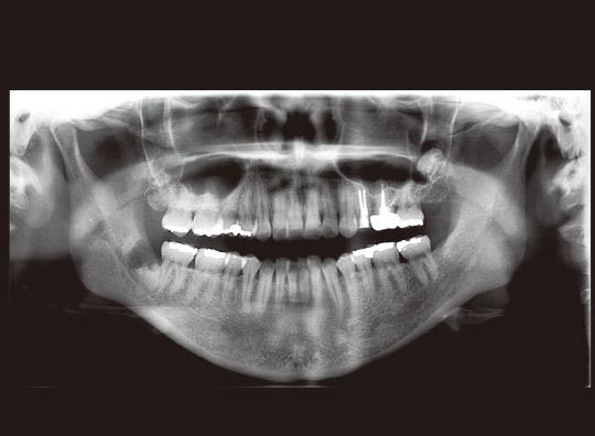 図21 初診時パノラマX線写真