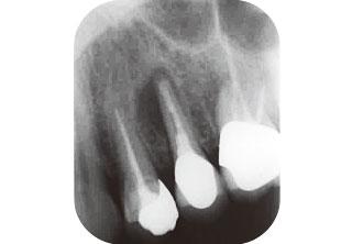 抜歯前デンタルX線写真