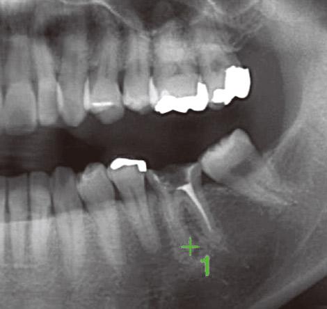 図9 パノラマスカウト画像でCT撮影部位を位置づけした。