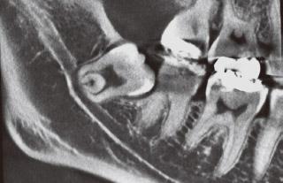 20歳前後の患者の下顎埋伏智歯のレントゲン写真