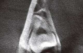 根尖部の歯根形態と下顎管の位置関係のレントゲン写真