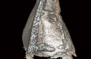 埋伏歯のボリュームレンダリング画像