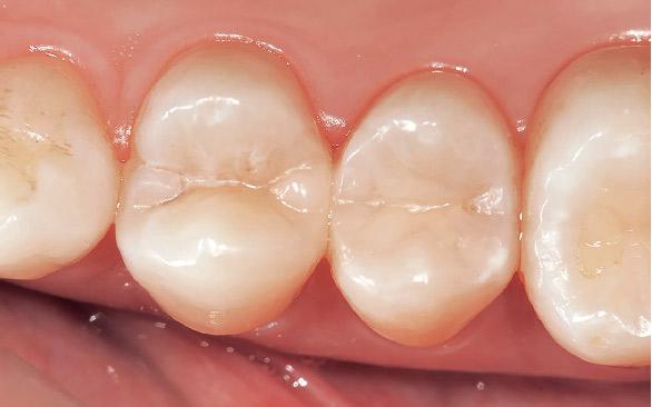 図12 術後。色調のみならず自然な隣接部の歯冠形態と接触点の回復ができたことにより、フロスによるメンテナンスも行えるようになった。