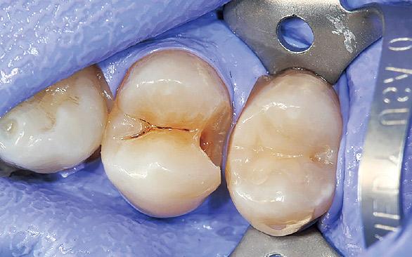 図2 第二小臼歯充填の後に第一小臼歯の充填物・感染歯質の除去を行った。
