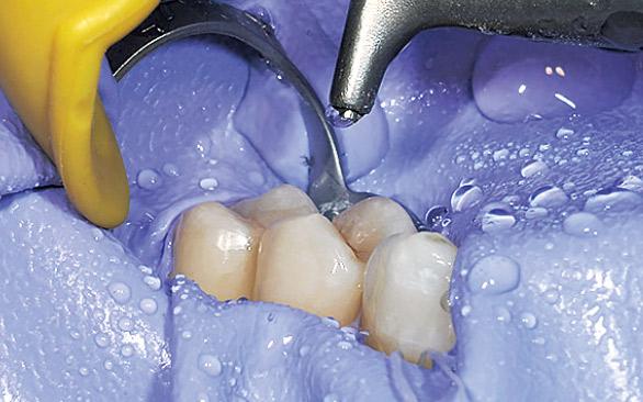 図3 インスティダム(ザーク社)にて防湿の後、接着操作に入る前にハンディジェットとPMTCパウダー(EMS社)にて歯面清掃を行う。