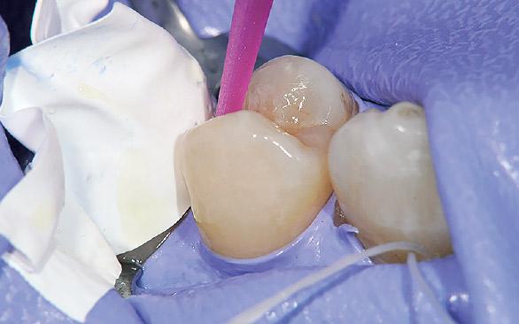図4 隣接歯への汚染を防ぐためテフロンテープで保護し、エッチング・ボンディングを行う。
