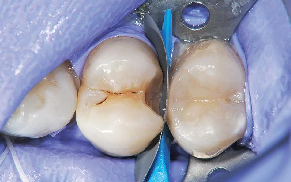 図7 隣接面窩洞の窩底部とマトリックスとの適合を高めるためにウェッジワンドスモール(ブルー)を挿入する。