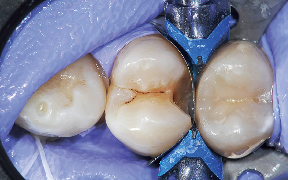 図8 隣接面コンタクトの回復のために歯間離開効果を持つコンポジタイト3Dリテーナー(スモール)を使用する。